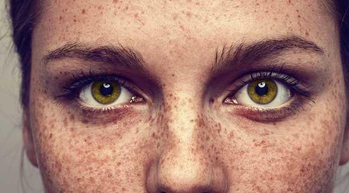 درمان کک و مک با استفاده از ماسک طبیعی