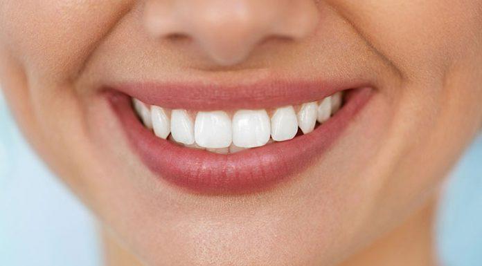 روش های طبیعی برای سفید کردن دندان در خانه به راحت ترین شکل ممکن