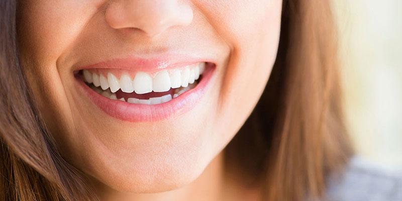 دندان های سفید یک خانم