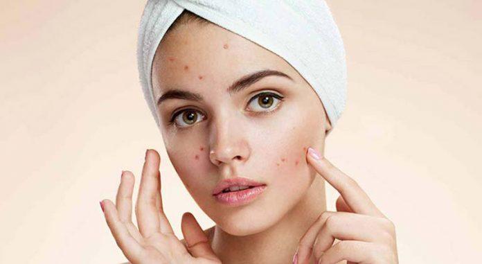 روش های درمان جوش صورت