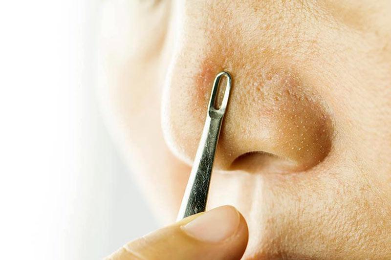 از بین بردن جوش سر سیاه بینی